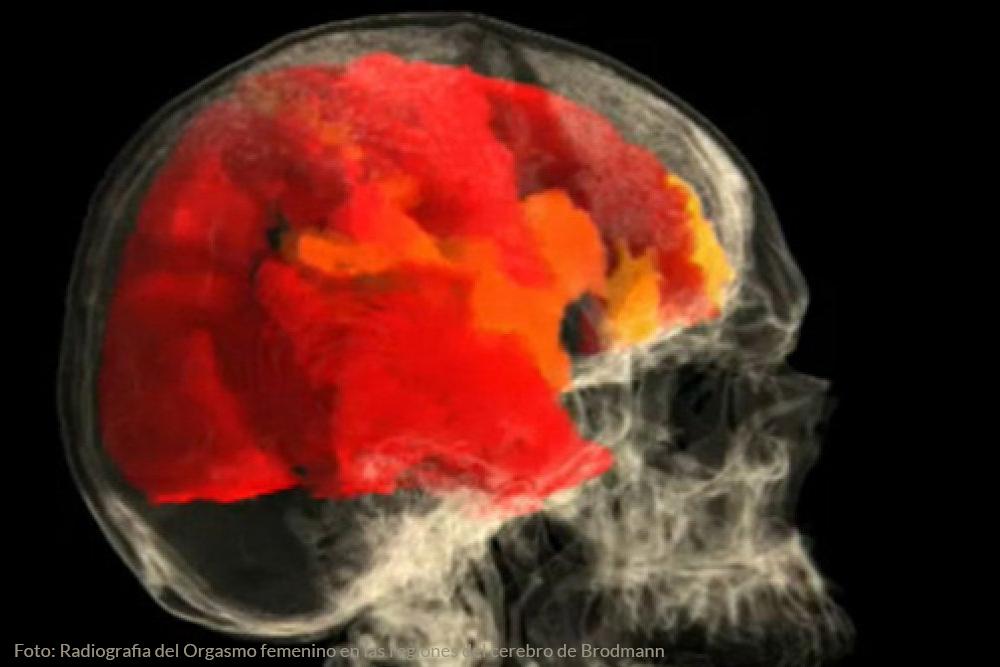 imagen de resonancia magnetica del cerebro de una mujer durante un orgasmo
